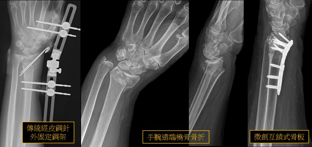 大腿 骨 頸 部 骨折 治療
